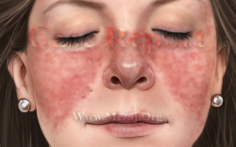 Treatment of Systemic Lupus Erythematosus in a 44-year-old Female Patient according to Iranian Traditional Medicine in Bojnurd