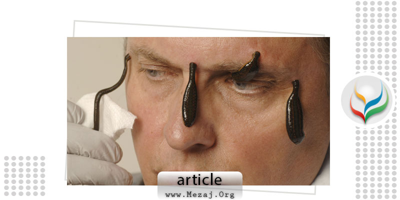 Post-auricular leech therapy reduced headache & migraine days in chronic migraine